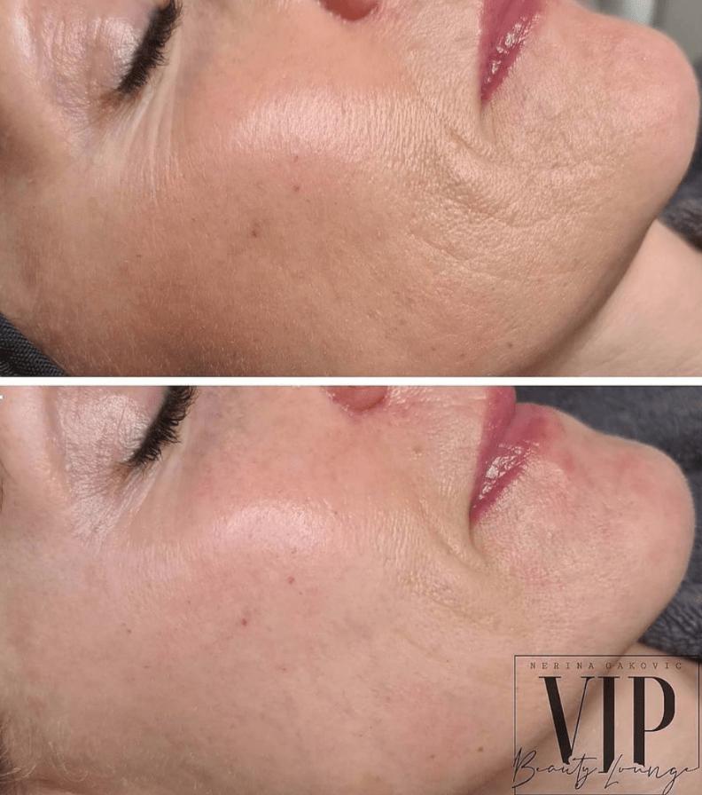 Før (oppe) og etter (nede) bilde fra Vip Beauty Lounge AS i Sandefjord. Etterbilde viser tydelige resultater ved øye-, munn- og hakeparti, samt forbedring av hudstruktur og hudtone.